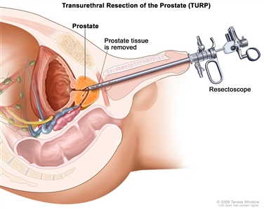 Transurethral resection of the prostate; drawing shows removal of tissue from the prostate using a resectoscope (a thin, lighted tube with a cutting tool at the end) inserted through the urethra.